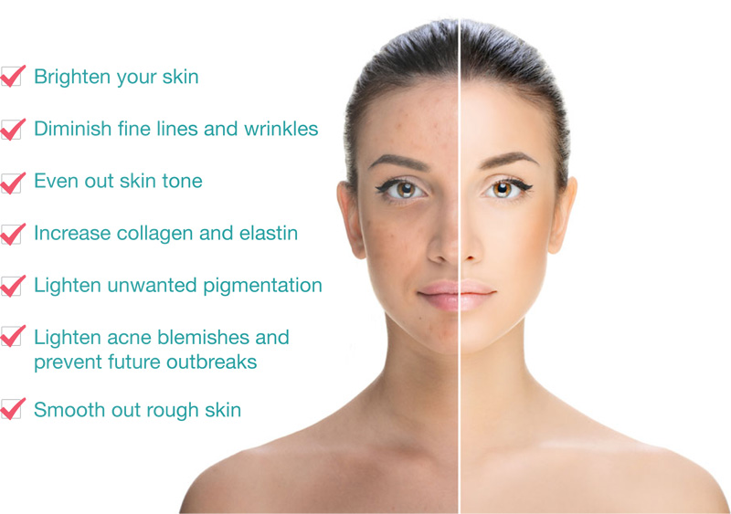 Chemical peels dr a kiran kumar a chemical peel can diminish many signs of ageing on the face as well as the hands neck and chesta chemical solution is applied to the skin that causes solutioingenieria Image collections