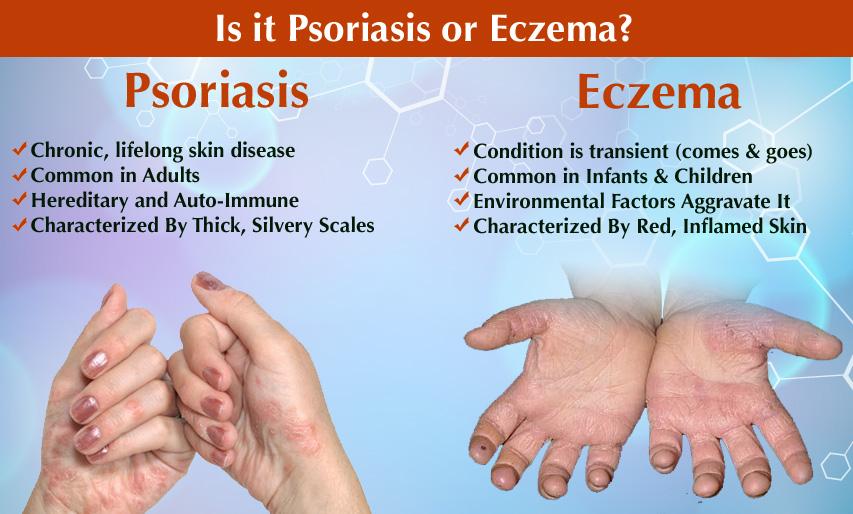 eczema-and-psoriasis