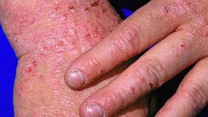 eczema1