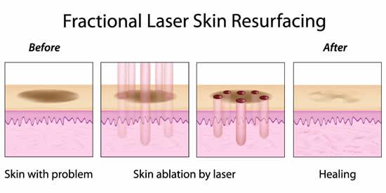 fractional_laser