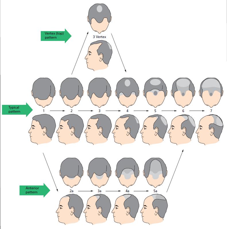 male apttern baldness