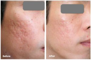 DermaRoller-for-acne-scarring-2