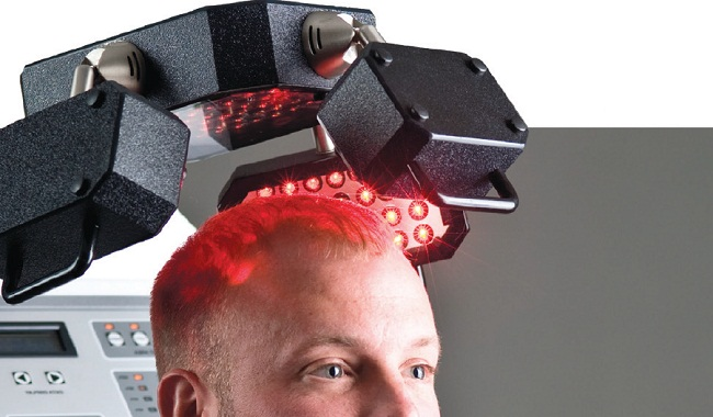 Laser-hair-loss-therapy1