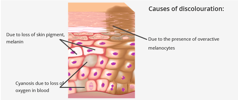 What-causes-this-brown-skin-discolouration