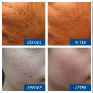 dermapen-Acne-Scarring-before-and-after